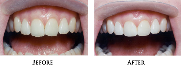 Teeth Recontouring in Norwalk