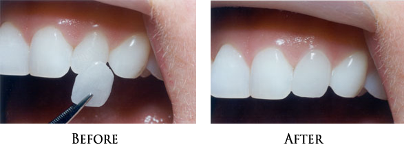 Dental Veneers in Norwalk