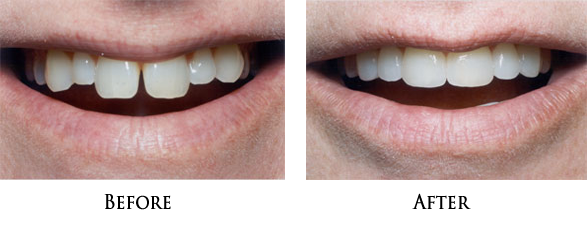 Dental Veneers in 90650