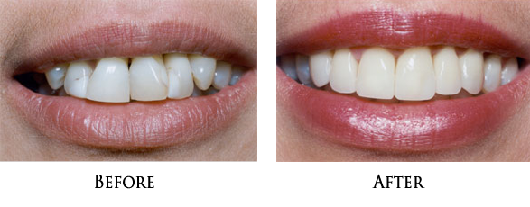 Cosmetic Dentist near 90650