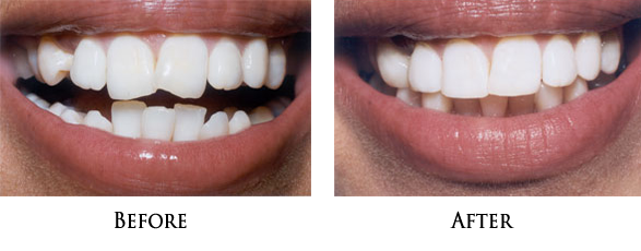 Teeth Recontouring Near 90650
