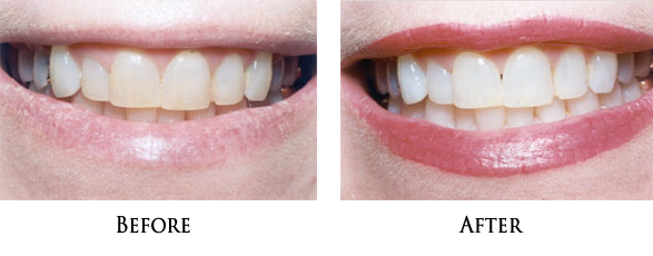 Dental Bleaching in Norwalk